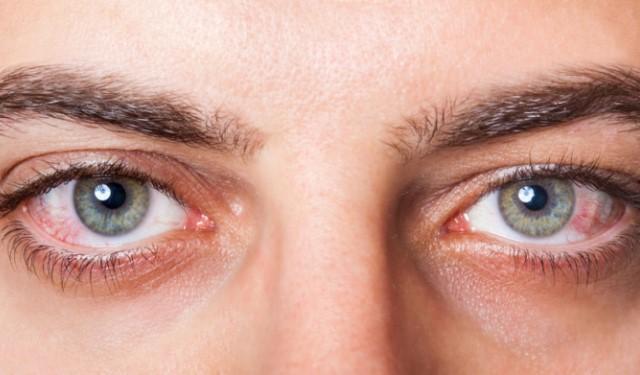 红眼病.jpg