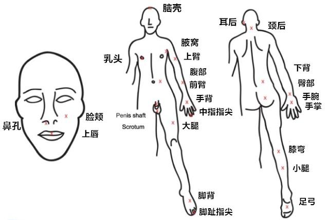 刺痛位置_副本.jpg